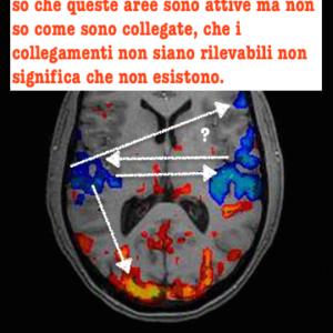 fmri-brain_t